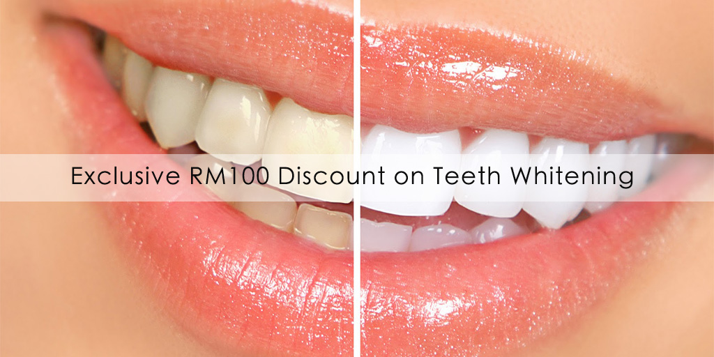 RM100 discount on Teeth Whitening treatment exclusively for you! Brought to you by MYDOC.my & Tan Dental Surgery (Klang)