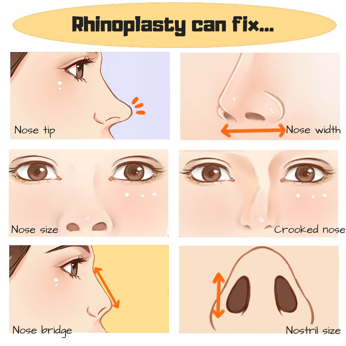 Rhinoplasty or Non-Surgical Nose Jobs? | Erufu Care