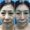 Before After - 6 SenZ facial sculpure (Temporal, Undereye, Cheek Fillers & BTA crow's feet)