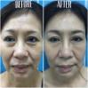 Before After - 6 SenZ facial sculpure (Temporal, Undereye, Cheek Fillers & BTA crow's feet)