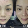 Before After - Acne SOS & PRP (3x)