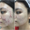 Before After - Acne SOS & PRP (4x)