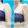 Before After - Arms Tickle Lipo