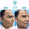 Before After - Benign Skin Lesions Removal