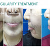 Before After - BTA Chin Irregularity Treatment