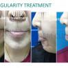 Before After - BTA Chin Irregularity Treatment