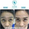 Before After - BTA Forehead Wrinkle Treatment