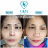 Before After - V Shape Face Contouring