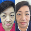 Before After - Eyebag Removal with Mid-Cheek Lift & Sub Brow Lift Surgeries