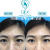 Before After - Tear Trough Treatment (Filler)