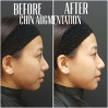 Before After - Chin Augmentation (Filler)
