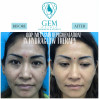 Before After - ODP (Melasma Depigmentation) & Hydraglow Therapy (1x)