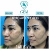 Before After - ODP (Melasma Depigmentation)