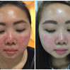 Before After - Rosacea Treatments