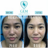 Before After - Rosacea, Melasma Treatments