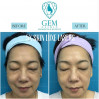 Before After - Skinluxe Laser (5x)