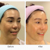 Before After - Skinluxe For Melasma