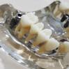 Elements Dental Clinic - Dental Procedures