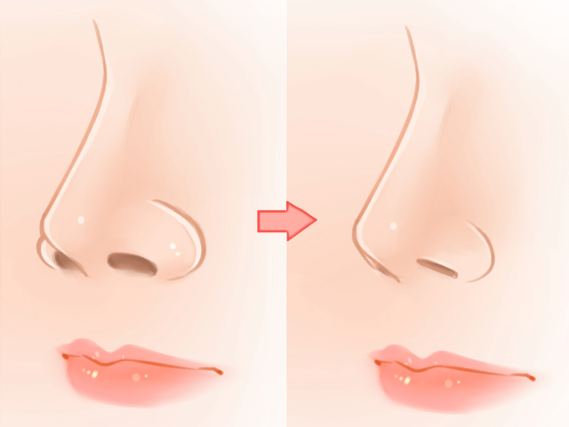 What Are the Different Types of Rhinoplasty?