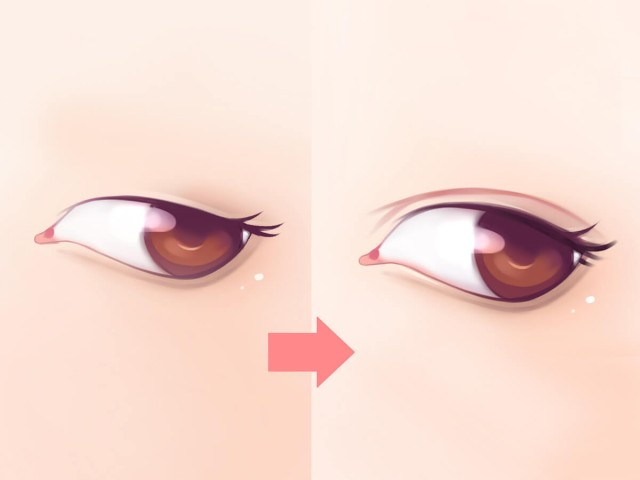 How To Get Double Eyelids Without Surgery?
