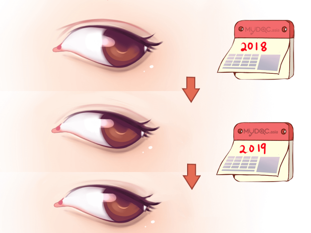 Is Double Eyelid Suturing Permanent? | Erufu Care