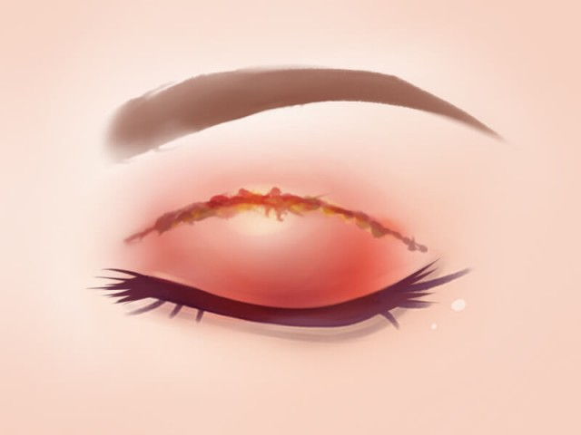 What are the Risks and Side Effects of Double Eyelid Treatments?