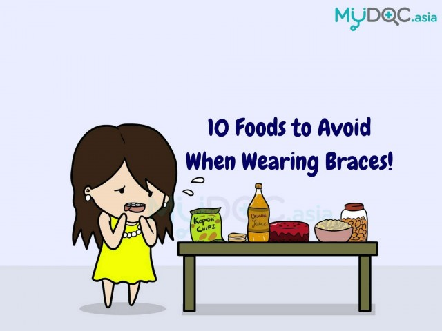Some Known Facts About Foods To Avoid With Braces.