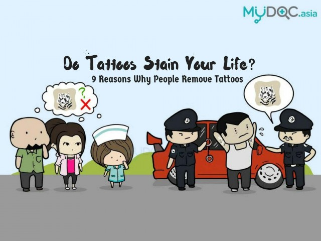 9 Reasons Why People Remove Their Tattoos