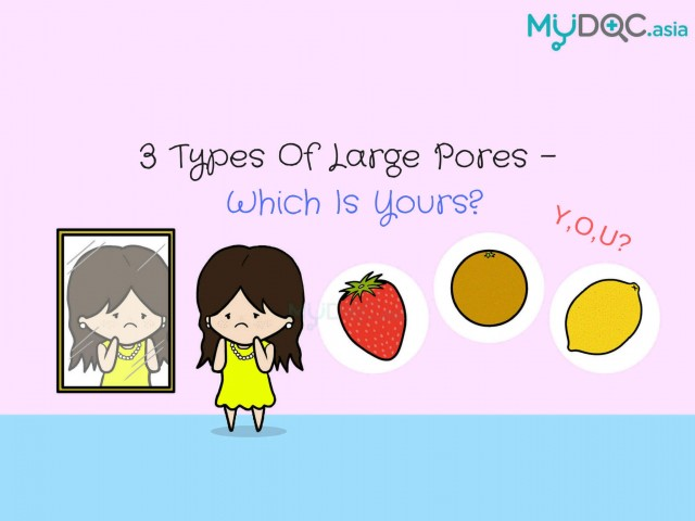 3 Types of Large Pores - Which is Yours?