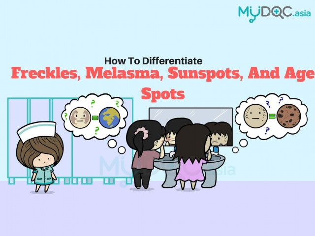 Pigmentation? Here's How to Differentiate between Freckles, Melasma, Sunspots, and Age Spots!