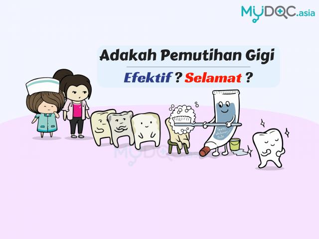 Adakah Pemutihan Gigi Efektif dan Selamat?