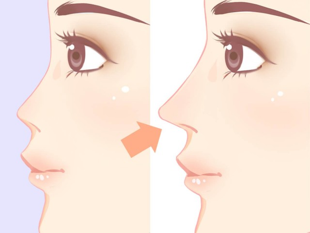 Rhinoplasty or Non-Surgical Nose Jobs?