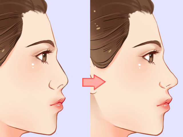 Will a Nose Job Change My Voice?