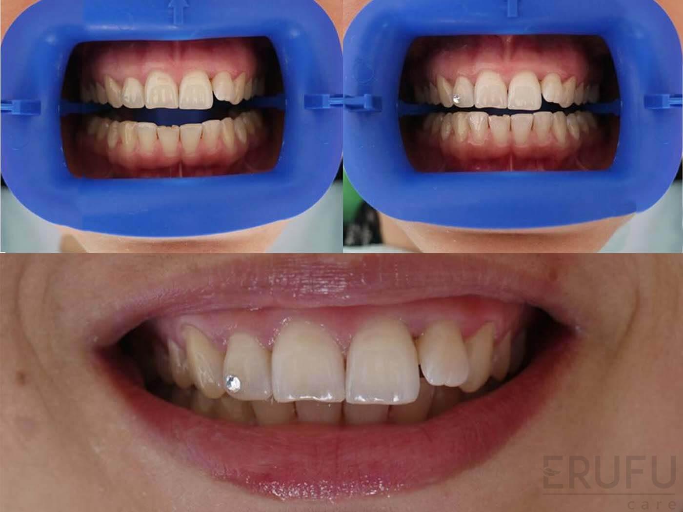 Pipi Pembuka Source · Oasis Dental Clinic Ara Damansara Tooth Jewelry .
