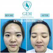 Before After - Acne SOS & Skinluxe Laser