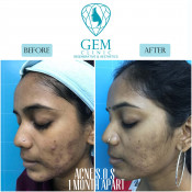 Before After - Acne SOS