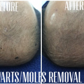 Before After - Warts, Moles, Benign Skin Lesions Removal