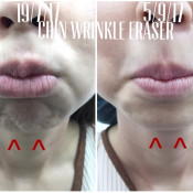 Before After - BTA Chin Wrinkle Treatment
