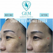 Before After - BTA Crow's Feet Treatment