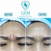 Before After - BTA Glabellar Wrinkles Treatment