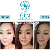 Before After - Face Slimming & Chin Augmentation