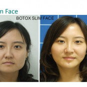 Before After - Botox Slim Face