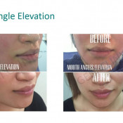 Before After - Botox mouth angle elevation