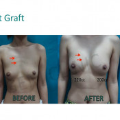 Before After - Breast Fat Graft