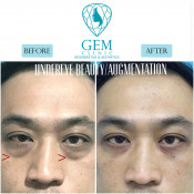 Before After - Eyebag Removal Surgery