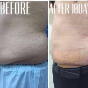Before After - MIBS Tummy Tickle Lipo