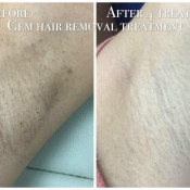 Before After - MPL Armpit Hair Removal