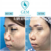 Before After - MPL Depigmentation