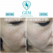 Before After - MPL for Freckles, Pigmentation