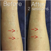 Before After - MPL Hand Lentigo